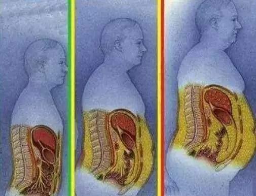 科学家发现饭后抑制脂肪合成机制:都可以光吃不胖?